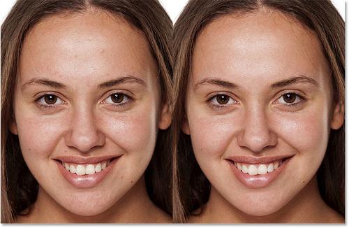 Photoshop快速消除脸部的痘痘和肤色处理